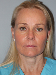 Face & Neck After Photo