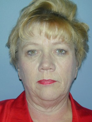 Facelift Before Photo