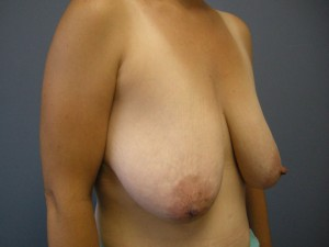 Breast Reduction Before Photo
