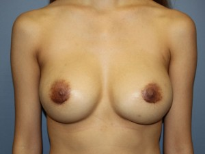 Breast Revision After Photo