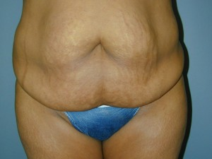 Tummy Tuck Before Photo