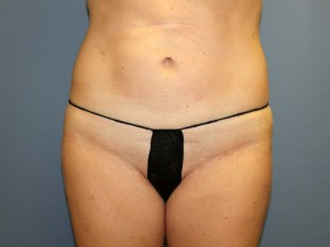 Liposuction After Photo