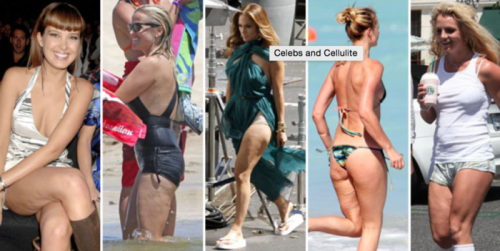 10 Myths and Facts About Cellulite