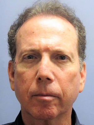 Male Facelift, LiteLift®, and Necklift Before Photo