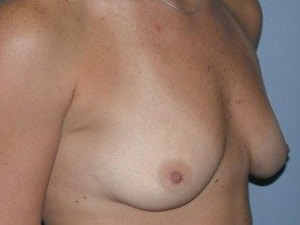Breast Augmentation Before Photo