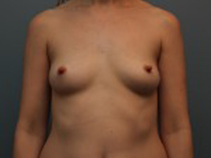 California Breast Lift® Before Photo