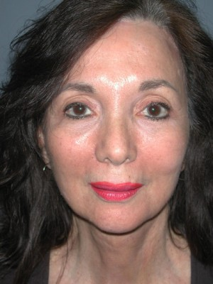 Brow Lift After Photo