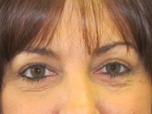 Eyelid Surgery After Photo