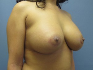 Breast Augmentation After Photo