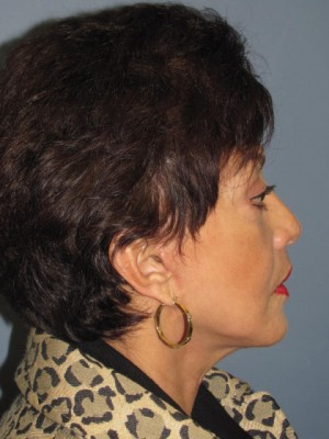 Neck Lift After Photo