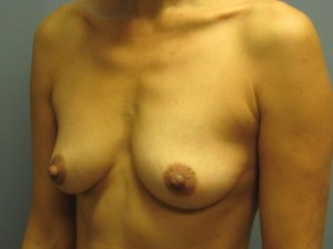 Ideal Implant Before Photo