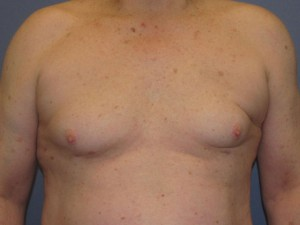 Male Breast Reduction (Gynecomastia) After Photo