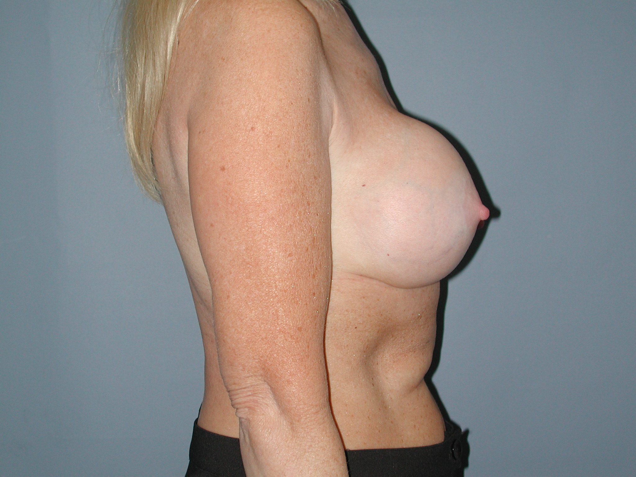 Breast Revision Before Photo