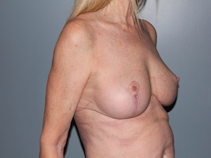 Breast Reduction After Photo