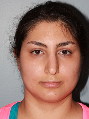 Face & Neck Before Photo