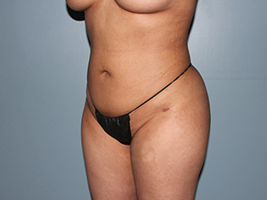 Buttock Augmentation After Photo