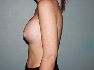 Tubular Breasts After Photo
