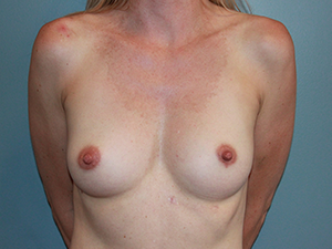 California Breast Lift® After Photo