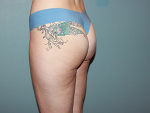 Cellfina Cellulite Reduction After Photo