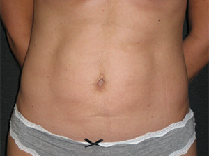 Body After Photo