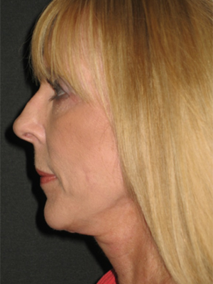 Facelift After Photo